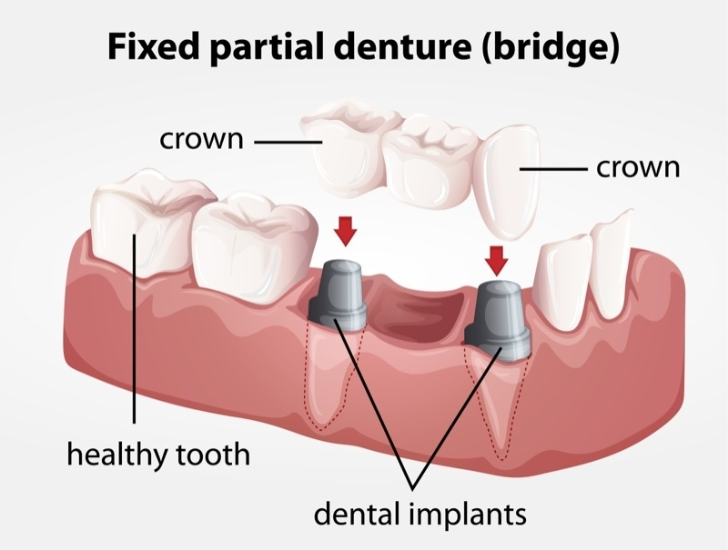 dental implants surgery services