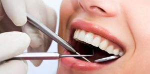 Implant Dentistry in Canoga Park