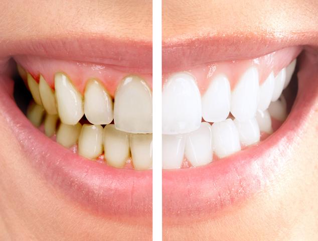 cosmetic dentist in Los Angeles