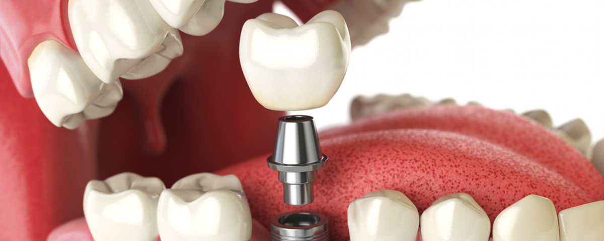 Implant Dentistry Importance